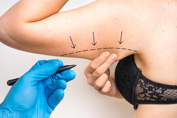 braquioplastia tratamiento estetico
